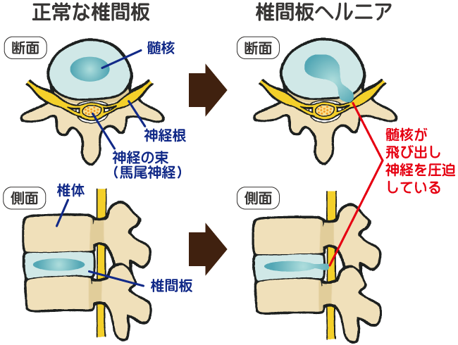 「腰椎椎間板ヘルニア 画像」の画像検索結果